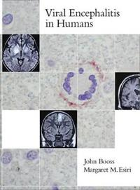 Viral Encephalitis in Humans
