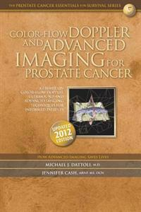 Color-Flow Doppler and Advanced Imaging for Prostate Cancer: A Primer on Color-Flow Doppler Ultrasound and Advanced Imaging Techniques