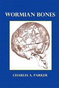 Wormian Bones