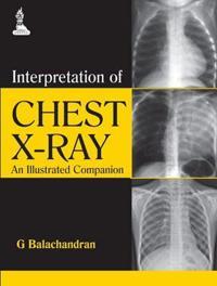 Interpretation of Chest X-Ray