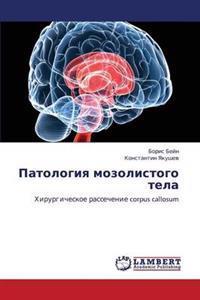 Patologiya Mozolistogo Tela