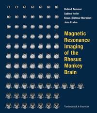 Magnetic Resonance Imaging of the Rhesus Monkey Brain
