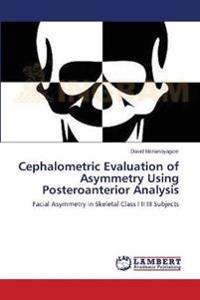 Cephalometric Evaluation of Asymmetry Using Posteroanterior Analysis