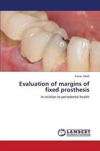 Evaluation of Margins of Fixed Prosthesis