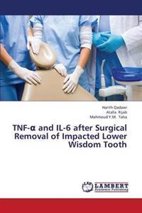 Tnf- And Il-6 After Surgical Removal of Impacted Lower Wisdom Tooth