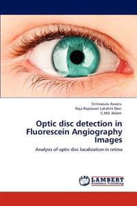 Optic Disc Detection in Fluorescein Angiography Images