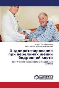 Endoprotezirovanie Pri Perelomakh Sheyki Bedrennoy Kosti