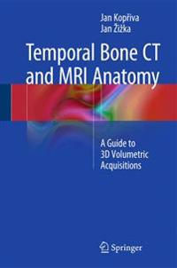 Temporal Bone Ct and MRI Anatomy