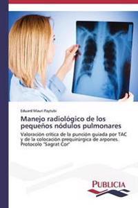 Manejo Radiologico de Los Pequenos Nodulos Pulmonares