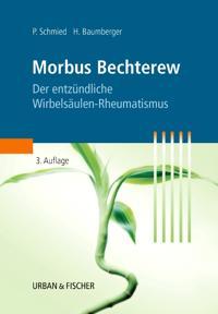 Morbus Bechterew, der entzündliche Wirbelsäulen-Rheumatismus