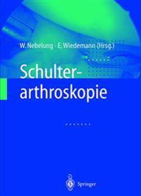 Schulterarthroskopie