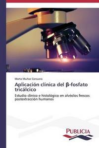 Aplicacion Clinica del -Fosfato Tricalcico