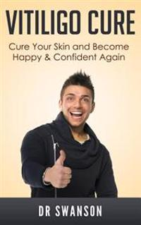 Vitiligo Cure: Cure Your Skin and Become Happy & Confident Again