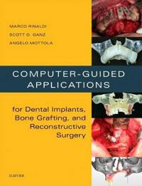 Computer-Guided Applications for Dental Implants, Bone Grafting, and Reconstructive Surgery
