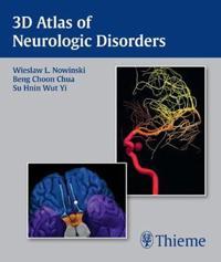 3D Atlas of Neurologic Disorders