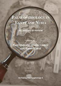 Palaeopathology in Egypt and Nubia