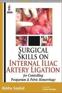 Surgical Skills on Internal Iliac Artery Ligation for Controlling Postpartum and Pelvic Hemorrhage