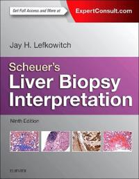 Scheuer's Liver Biopsy Interpretation