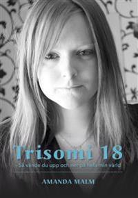 Trisomi 18 : så vände du upp och ner på hela min värld