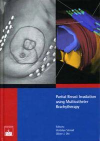 Partial Breast Irritation using Multicatheter Brachytherapy