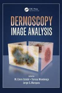 Dermoscopy Image Analysis