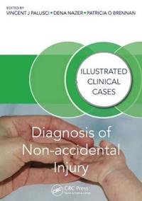 Diagnosis of Non-Accidental Injury