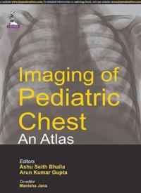 Imaging of Pediatric Chest