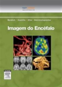 Imagem do Encefalo