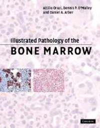 Illustrated Pathology of the Bone Marrow