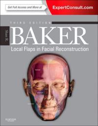 Local Flaps in Facial Reconstruction E-Book