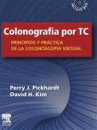 Colonografia por TC: Principios y practica de la colonoscopia virtual