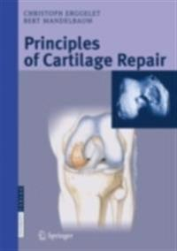 Principles of Cartilage Repair