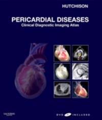 Pericardial Diseases E-Book