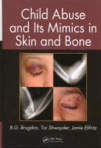 Child Abuse and its Mimics in Skin and Bone