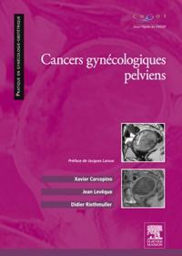 Cancers gynecologiques pelviens