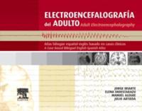 Electroencefalografia del adulto