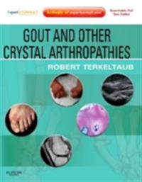 Gout & Other Crystal Arthropathies E-Book