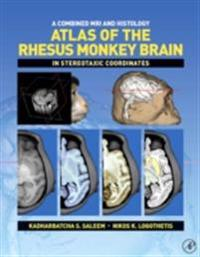 Combined MRI and Histology Atlas of the Rhesus Monkey Brain in Stereotaxic Coordinates