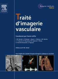 Traite d'imagerie vasculaire