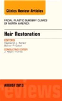 Hair Restoration, An Issue of Facial Plastic Surgery Clinics, E-Book
