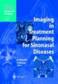 Imaging in Treatment Planning for Sinonasal Diseases