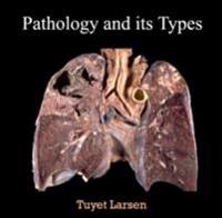 Pathology and its Types