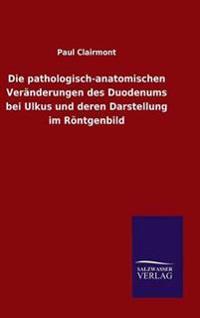 Die Pathologisch-Anatomischen Veranderungen Des Duodenums Bei Ulkus Und Deren Darstellung Im Rontgenbild