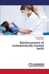 Reinforcement of Endodontically Treated Teeth