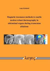 Magnetic Resonance Methods to Enable Motion Robust Thermography in Abdominal Organs During Transcutan Ablations