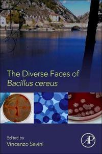 The Diverse Faces of Bacillus Cereus