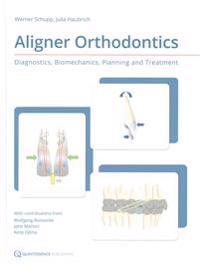 Aligner Orthodontics