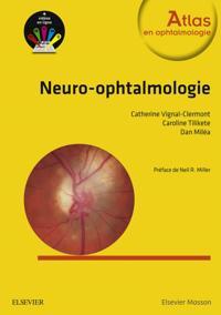 Neuro-ophtalmologie CAMPUS
