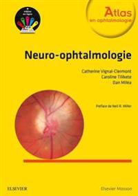 Neuro-ophtalmologie