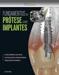 Fundamentos da Protese Sobre Implantes